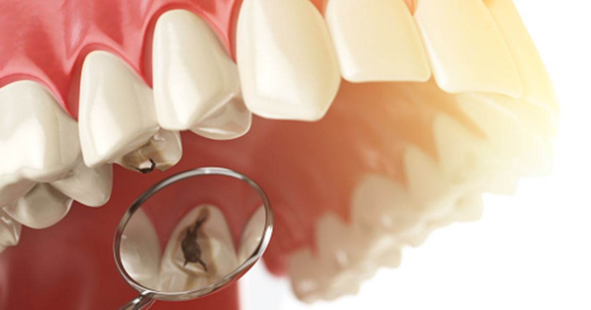 Human tooth with caries, hole and tools. Dental searching concep